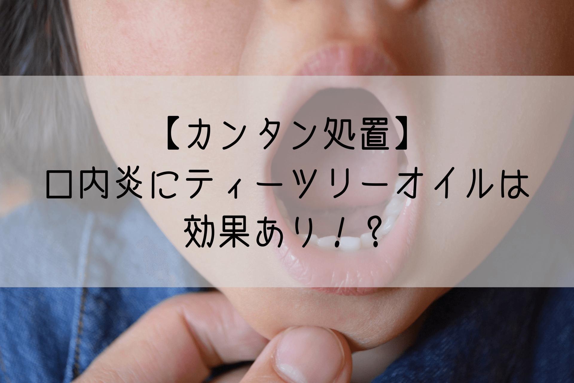 【カンタン処置】口内炎にティーツリーオイルは効果あり!? (1)